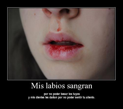 mis labios sangran